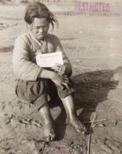 빨치산 혐의로 국군 수도사단 관할 수용소에 수감된, 발에 동상을 입은 여성 포로|1951.12.10. NARA 소장