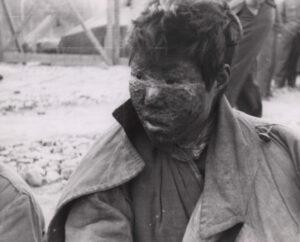 네이팜탄 폭격으로 얼굴 전체에 화상을 입은 소년|NARA 소장, 전갑생 제공